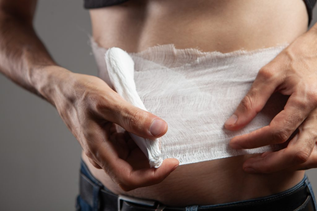 Stomach Pain After a Car Accident: Signs You May Be Injured 2