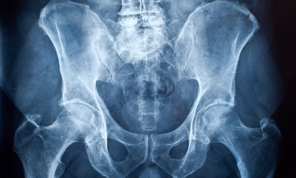 An x-ray image of the hip bones.