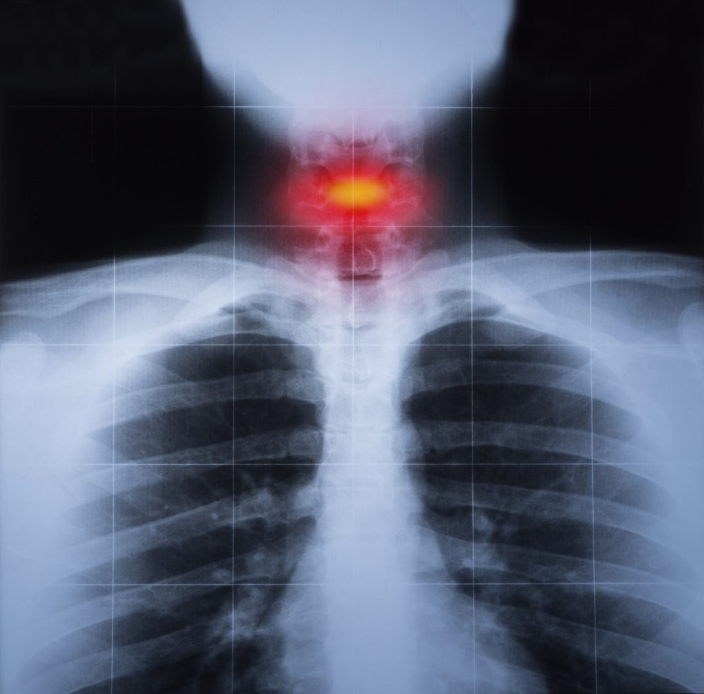 X-ray image of a the neck of a car accident victim with cervical trauma highlighted in red.