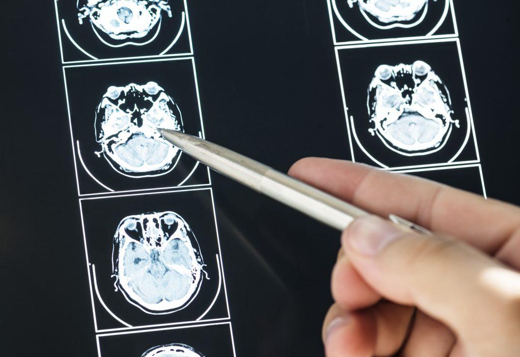 Doctor examining MRI scan.